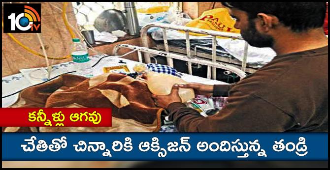 DELHI MAN TO SAVE HIS CHILD GIVING OXIGEN BY AMBU BAG