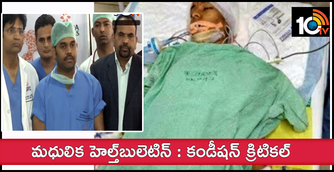 Madhulika | Malakpet Yashoda Hospital Doctors Release Health Bulletin