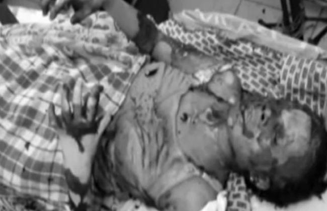 petrol attack at warangal