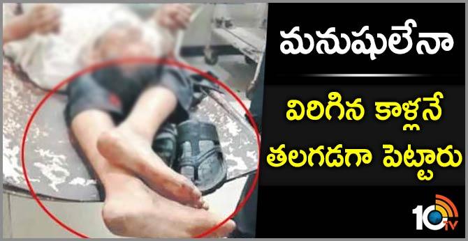 Faridabad Shocker Civil Hospital Staff made pillow to patients legs