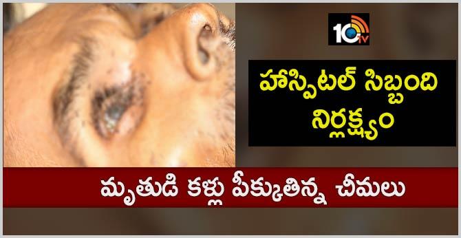 Ants Crawl On Dead Patients' Eye In Madhya Pradesh Hospital, 5 Suspended