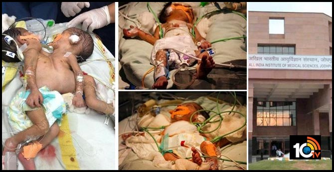 doctors successfully separate conjoined twins at aiims in jodhpur