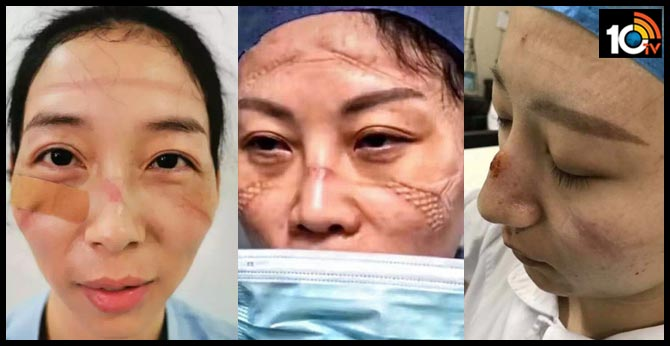 'They are heroes': Pics of Chinese medics with mask marks go viral amid coronavirus outbreak