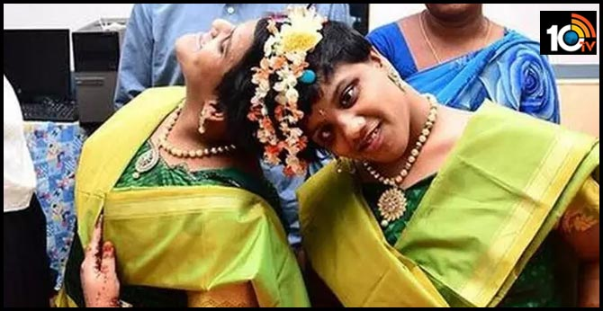 The undivided twins Veena vani will attend the ssc exams, they write exams ownly