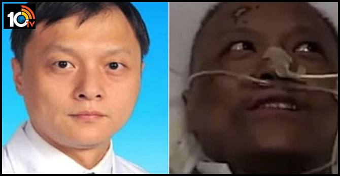Wuhan doctor Died who changed color