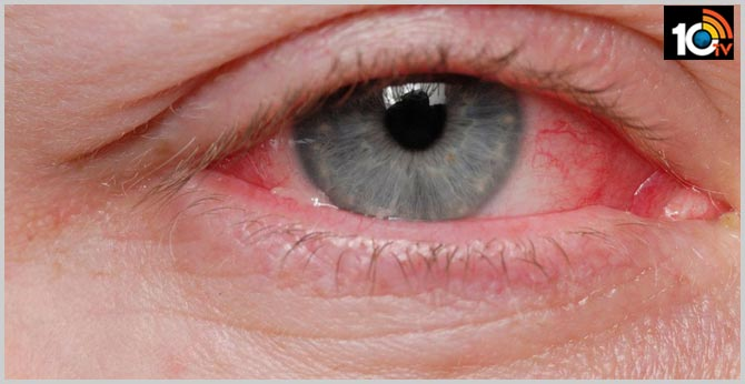 Pink eye may be primary symptom of COVID-19: