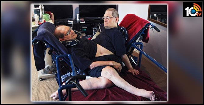 ronnie-and-donnie-galyon-worlds-longest-surviving-conjoined-twin-brothers-died