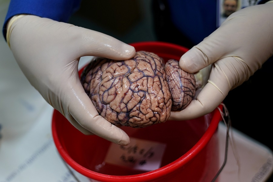 Some patients' brains may age 10 years