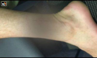 flesh-eating-buruli-ulcer-cases-in-australia